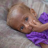 Nusair werd meerdere keren door ons team ter plaatse zwaar ondervoed aangetroffen. Zijn leven werd twee keer gered.<a href=