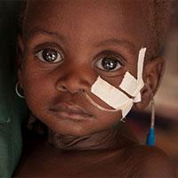 Shamsia uit Niger is pas 1 jaar oud, maar nu al ernstig ondervoed. Haar moeder Lantana maakt zich grote zorgen. Ze heeft al een kind verloren, en nu is Shamsia ook ernstig ziek.&nbsp;<a href=