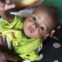 Yusuf (3 mnd) woont in een vluchtelingenkamp samen met zijn moeder en broertjes en zusjes. Hij overleefde acute ondervoeding dankzij het mobiele team van Save the Children.<a href=